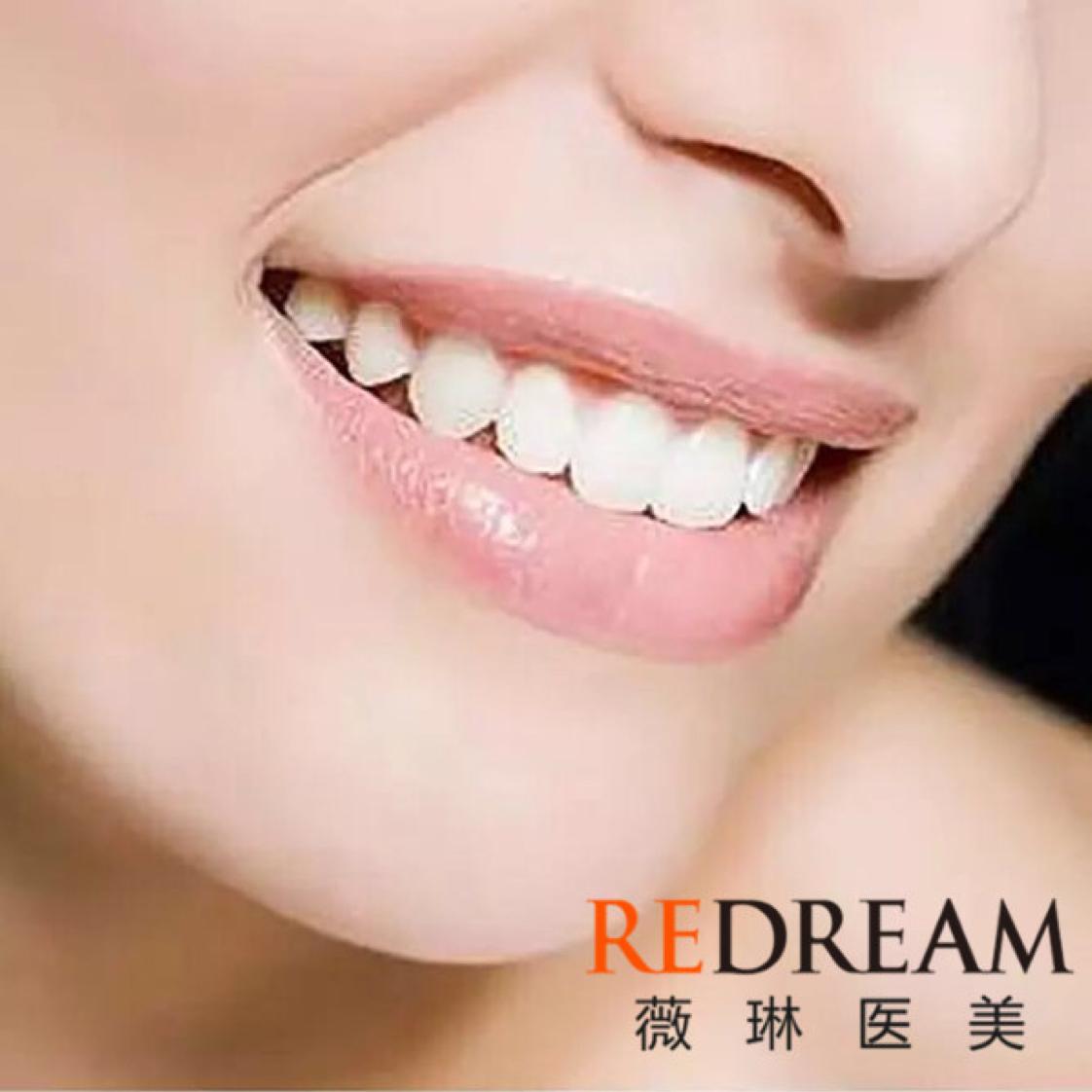 - 【洗牙+抛光】超声波洗牙1次  彻底清除牙周问题